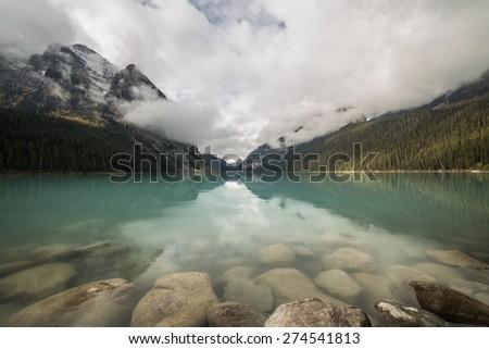 Cloudy morning at Lake Louise in Banff National Park, Alberta, Canada (horizontal) - stock photo