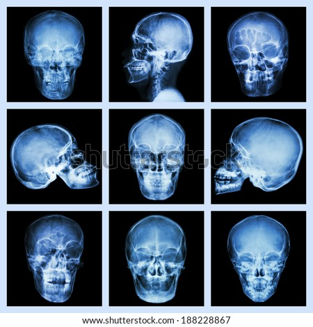 Collection of asian skull - stock photo