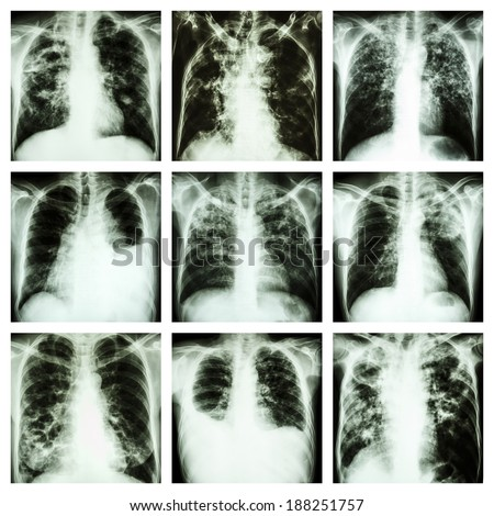 Collection of lung disease (Pulmonary tuberculosis,Pleural effusion,Bronchiectasis) - stock photo