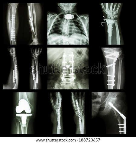 Collection of orthopedic operation - stock photo