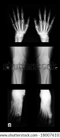 collection of x-ray;hand.knee.foot - stock photo