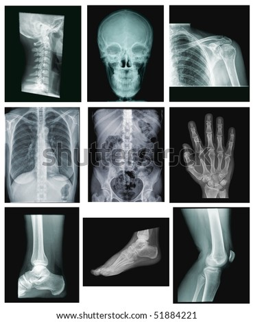 collection of x-ray images: spine, skull, shoulder, chest, belly, hand, ankle, foot, knee - stock photo