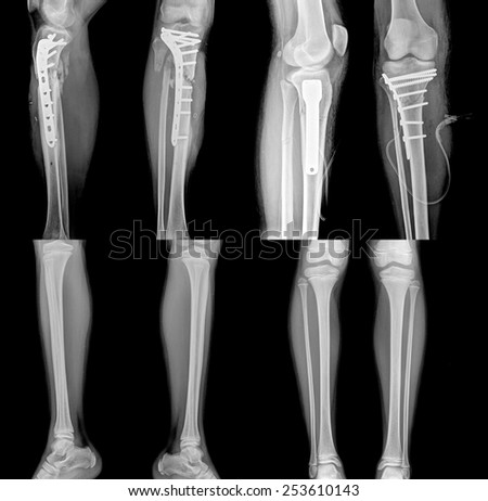 collection of x-ray of leg with metal plates , normal leg - stock photo