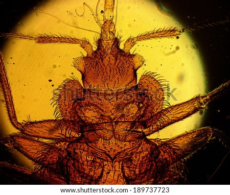 Common bed bug (Cimex lectularius) underside - permanent slide plate under high magnification - stock photo