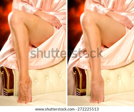 Comparison legs of a woman without and with retouching - stock photo