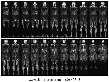 Complete real MRI scan of the human body, from the front and back - stock photo