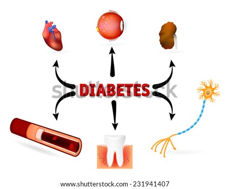 Complications of diabetes mellitus. diabetes complications such as blindness, heart disease, kidney failure, High Blood Pressure and other. - stock photo