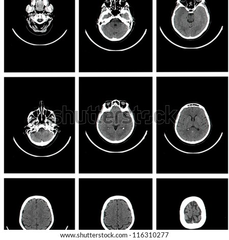 Computed tomography of brain - stock photo