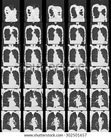 computer tomography of chest and abdomen, ct scan isolated on black background. - stock photo