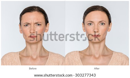 Concept of botox procedure. Middle age Woman with and without aging singes - worry wrinkles, nasolabial folds before and after cosmetic or plastic procedure, anti-age therapy, lips volume  - stock photo