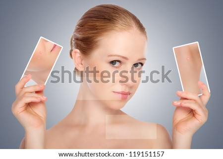 concept skincare . Skin of beauty young woman with acne  on a gray background - stock photo