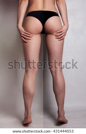 Concept skincare.The skin on the thighs of a young woman before and after cosmetic procedures.Cellulite treatment program for women, weight loss. over background with copy space. - stock photo