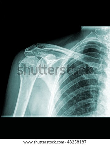 Conventional x-ray of the right shoulder, human shoulder front view - stock photo