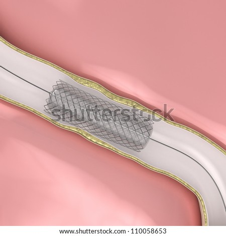 Coronary Angioplasty procedure - ballon with stent opening lumen artery     **** Also as footage available in my portfolio - stock photo