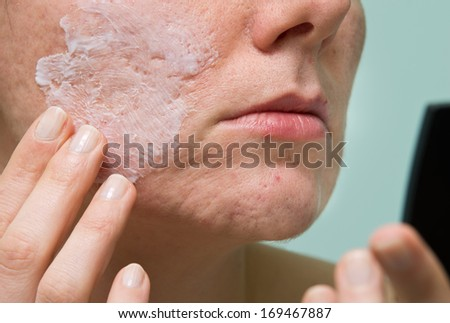 Cream applying to problematic female skin with acne scars - stock photo