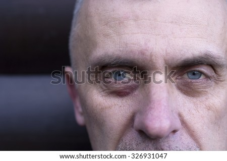 Cropped portrait of a matured man with bruise or scratch under his eye - stock photo