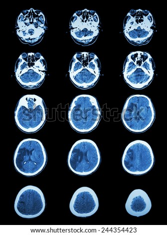CT scan (computed tomography) of brain show cerebral infarction at right temporal-parietal lobe  ( ischemic stroke ) - stock photo