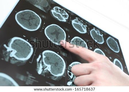 CT scan of the patient's brain and the hand of a doctor. Photo. - stock photo