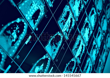 CT scan of thoracic segment. scientific background - stock photo