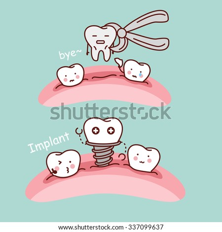 cute cartoon tooth extract and implant, great for health dental care concept - stock photo