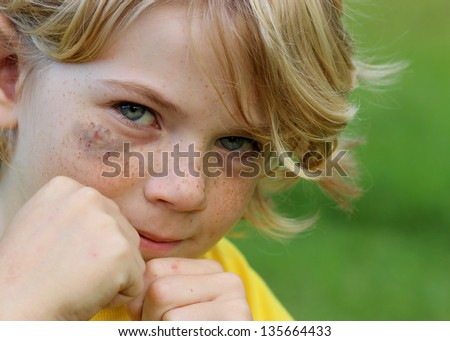 Cute Little boy with a black eye, fighting back - stock photo