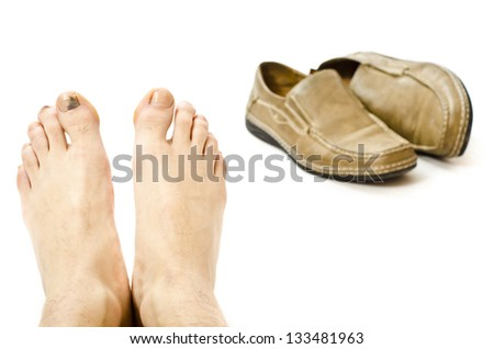 Damaged feet by inappropriate footwear, corns, calluses and bruises. - stock photo