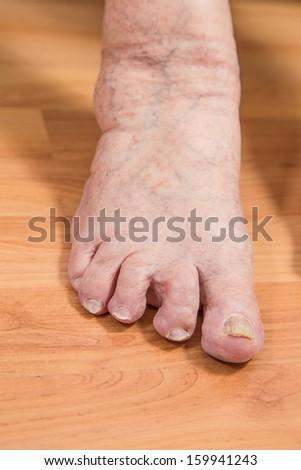 damaged toes - stock photo