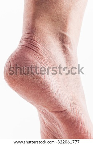 dehydrated skin on the heels of female feet - stock photo