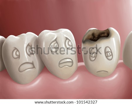 Dental caries - stock photo