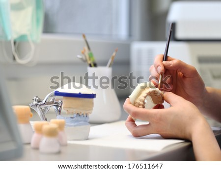 dental dentist objects implants - stock photo