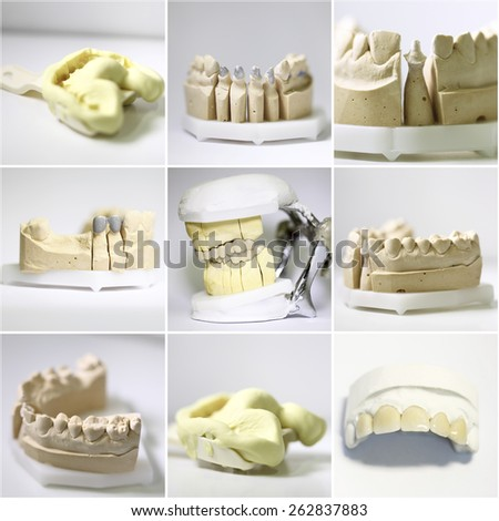 dental dentist objects implants composition collage  - stock photo