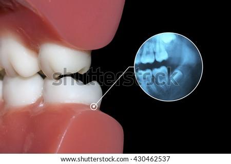dental diagnosis xrays teeth toothache graphic - stock photo