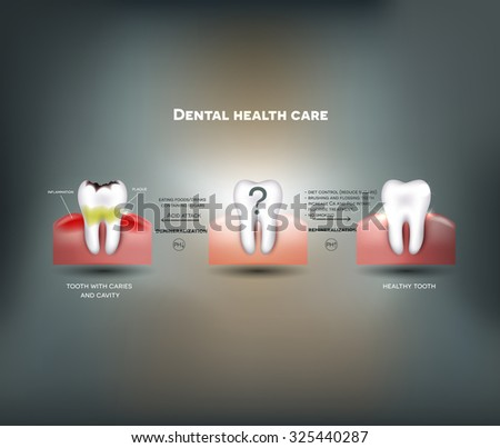 Dental health care tips. Diet without sugars, brushing, fluoride treatment etc. And tooth with caries failure to comply with hygiene  - stock photo
