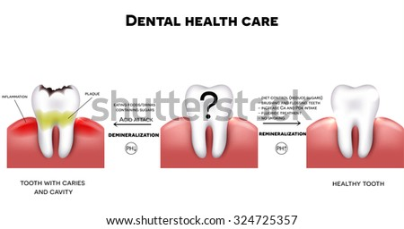 Dental health care, tips how to maintain healthy tooth, diet without sugars, brushing, fluoride treatment etc. And tooth with caries failure to comply with hygiene  - stock photo
