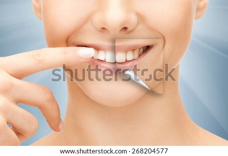 dental health concept - beautiful woman pointing to her teeth - stock photo