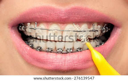 Dental Hygiene of Teeth with Braces. Oral  Health Concept. Female Mouth with Interdental Brush. Front View. - stock photo