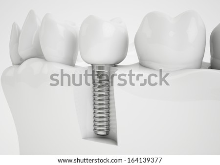 Dental implant - stock photo