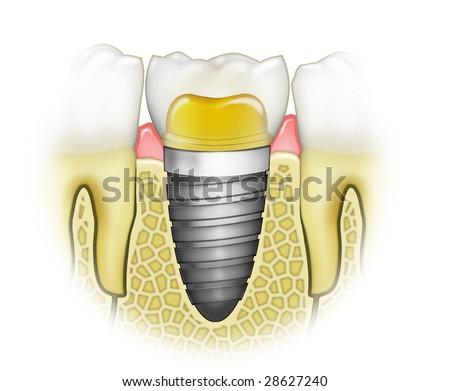 Dental Implant Detail Textbook Illustration - stock photo