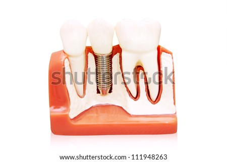 Dental implant - implanted in jaw bone. Isolated on white - stock photo