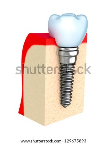 Dental implant in jaw bone - stock photo