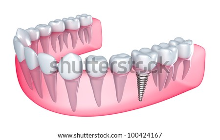 Dental implant in the gum - Isolated on white - stock photo