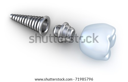 Dental implant lying on surface top side view isolated on white - stock photo