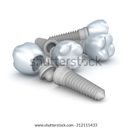 Dental implants, crowns and pins isolated on white - stock photo