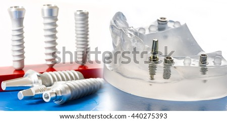 dental implants in dental model - stock photo