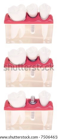 dental model with different types of treatments (implant placement, bonded bridge, crown over implant) isolated on white background - stock photo