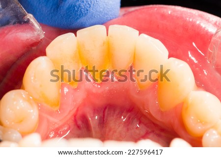 Dental plaque in human mouth on the denture. - stock photo