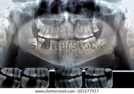 Dental radiography (ortopanoramica) Digital x-ray teeth scan. Panoramic negative image facial of adult male. - stock photo
