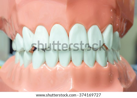 Dental study model in close up - stock photo