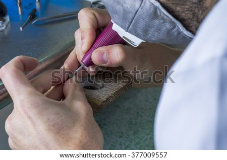Dental technician is working with articulator in metal structure of a dental crown or bridge in dental laboratory. - stock photo