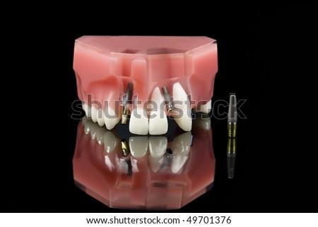 Dental Titanium Implant and Plastic teeth model over black - stock photo